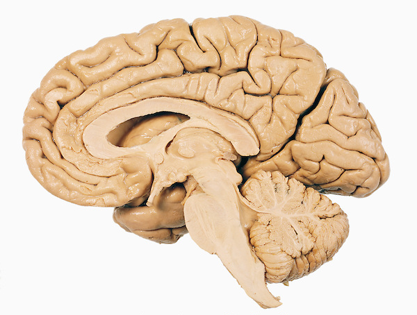 Cross-section of the right hemisphere of the brain